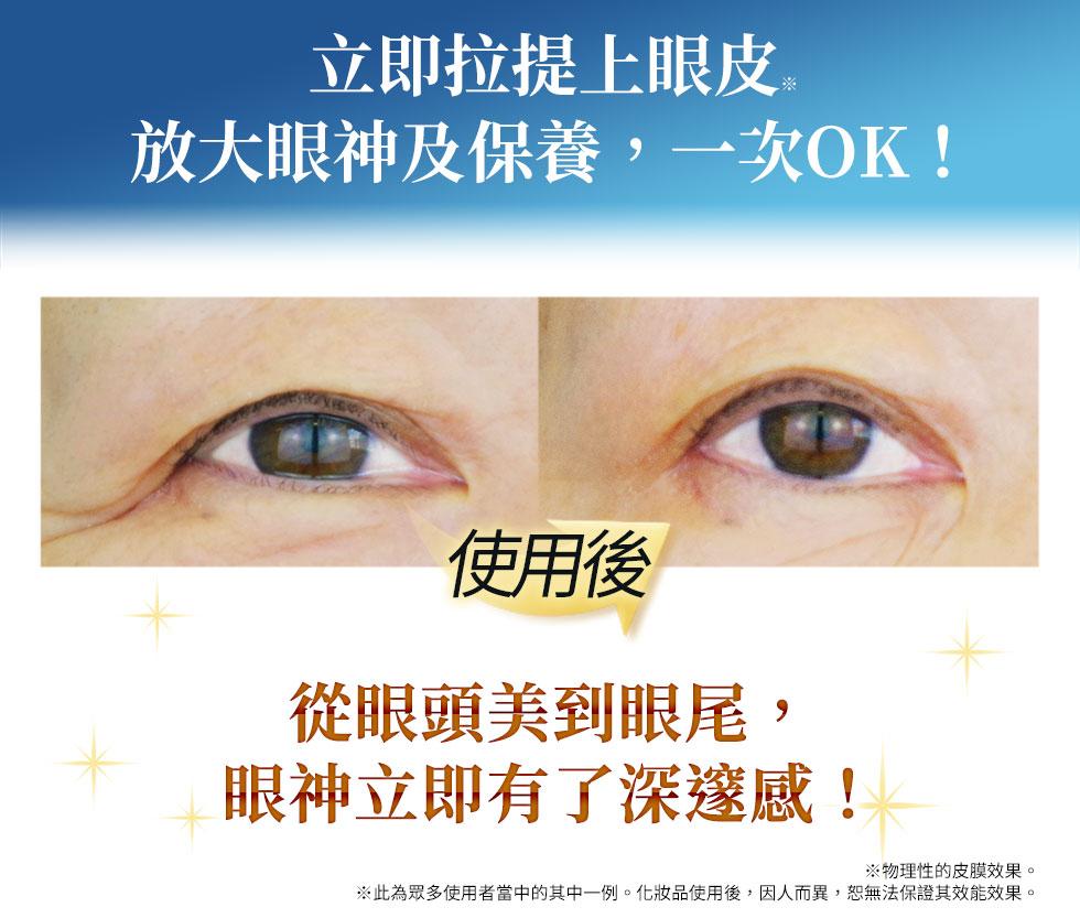 立即拉提上眼皮放大眼神及保養,一次OK!從眼頭美到眼尾,眼神立即有了深邃感!